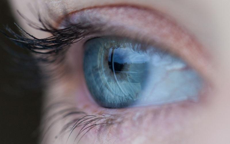 פתרונות טבעיים לעיניים יבשות