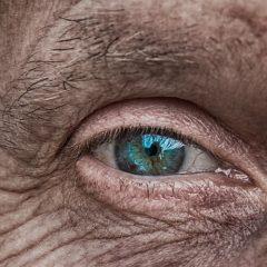 יובש בעיניים- ניסית הכל וכלום לא עזר? הפתרון בהישג יד